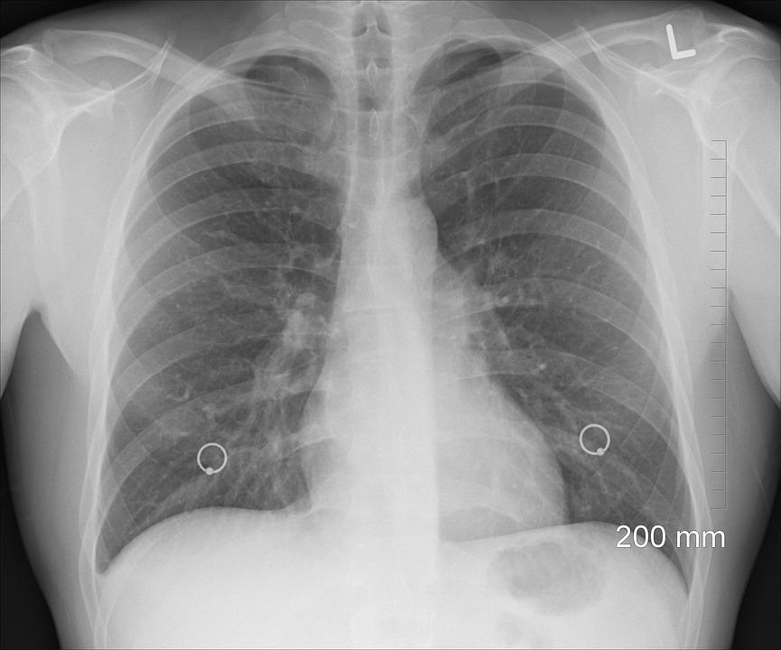 Двух больных туберкулезом асиновцев госпитализировали по суду